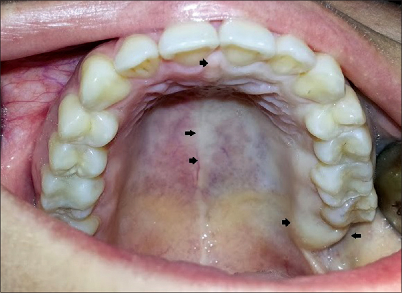 Skin and mucosal ischemia as a complication after inferior