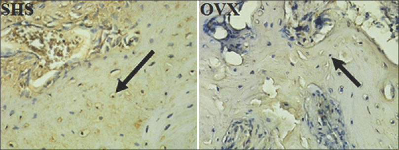 Figure 2: Immunohistochemistry staining from SHS and OVX for RUNX2 expression. Black arrow shows an expression of RUNX2. SHS: Postsham surgery group; OVX: Postovariectomy group; RUNX2: Runt-related transcription factor × 400.