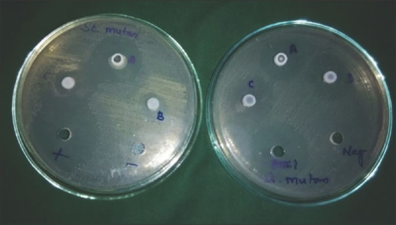 Figure 2: Zone of inhibition observed in <i>Streptococcus mutans</i> for toothpastes using Muller– Hinton agar.