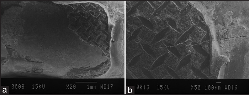 Figure 1: (a) Scanning electron microscope analysis revealed an enamel crack in one of the samples in group 3. (b) Enamel crack with more magnification.